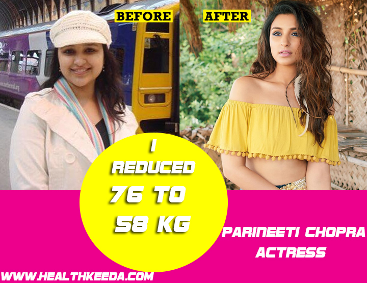 Parineeti Chopra Before and After Photo | Indian Celebrities Weight Loss